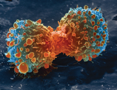 Lung cancer cell dividing | Image courtesy of US National Institute of Health